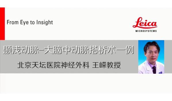 北京天坛医院王嵘:10 年烟雾病手术的思考,哪些术式能让患者最终获益?