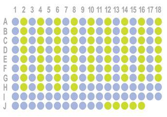 生存期胃癌178点组织芯片HStm-Ade178Sur-01