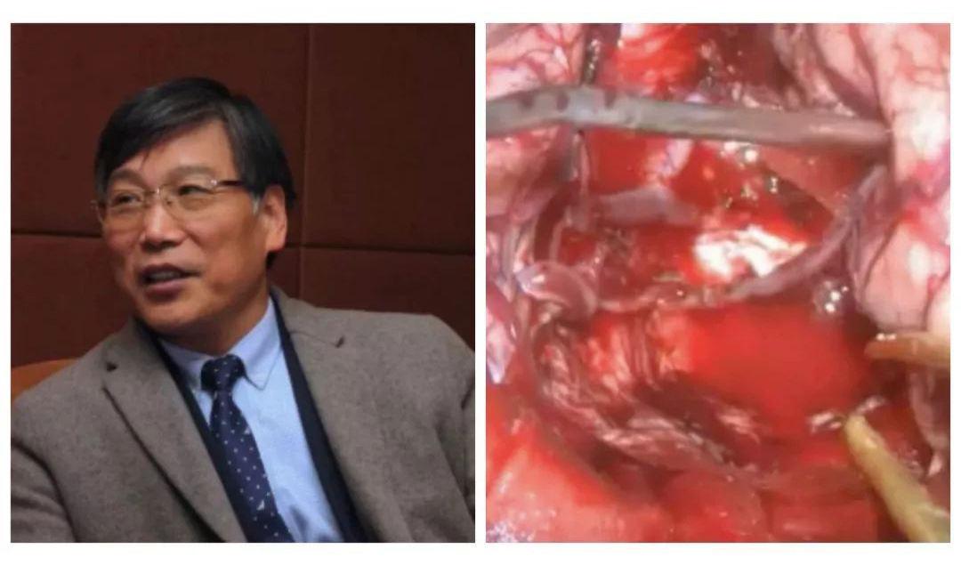 徐医附院于如同:胶质瘤手术如何做好静脉保护和近全切除