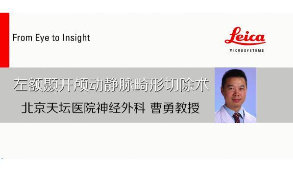 天坛医院曹勇:复杂动静脉畸形,为何要选择复合手术
