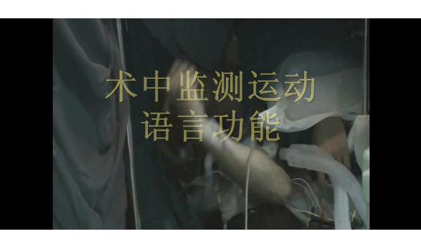 南部战区总医院王伟民:2018 版唤醒下大脑功能区手术技术指南解读,要关注患者行为学变化不能仅依靠电生理
