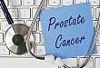 前列腺癌内分泌治疗新选择:「GnRH 拮抗剂」专家访谈