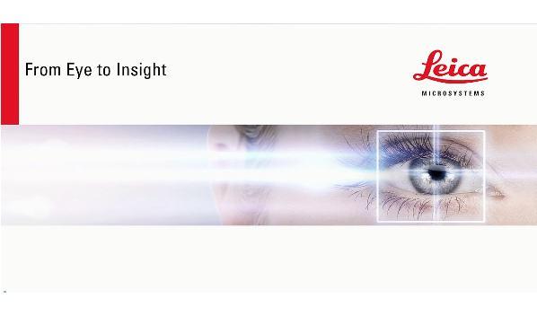 天坛医院赵元立:新型增强荧光在脑血管手术中能做什么(半年临床应用体会)