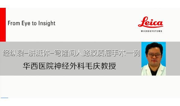 专访华西医院毛庆:脑胶质瘤术中打开脑室不会造成播散反而能切断肿瘤转移路径