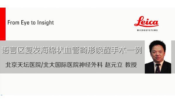 北大国际赵元立团队完成首例术中唤醒治疗功能区海绵状血管畸形|王伟民点评