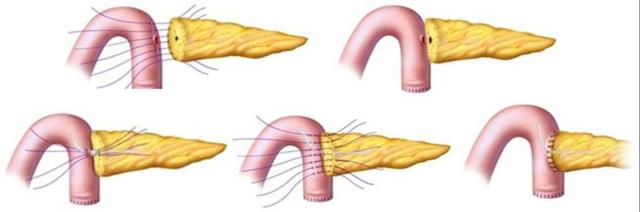 胰腺吻3.png