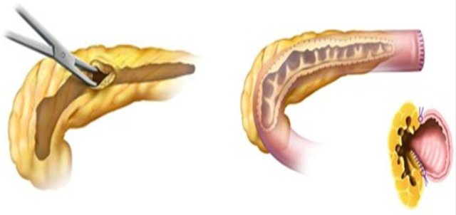 胰腺吻合5.png