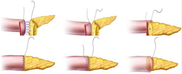 胰肠吻合1.png