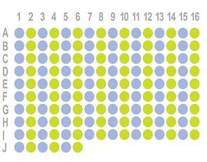 肾癌150点生存期组织芯片HKid-CRCC150CS-02