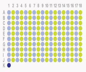 生存期肝细胞癌180点组织芯片HLivH180Su06