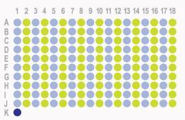 胃癌180点HStm-Ade180Sur-07