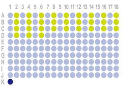 生存期肾透明细胞癌 180点组织芯片HKidE180Su02