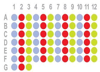 结肠癌75点组织芯片HCol-Ade075Pre-01