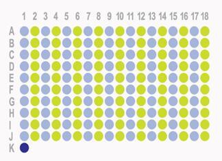 胃癌180点组织芯片HStm-Ade180Sur-06