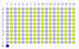 [肝癌,180点]HLiv-HCC180Sur-04 添加HLiv-HCC180Sur-02的AFP/CD34/ki67