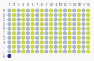 生存期胰腺癌180点组织芯片HPan-Ade180Sur-01