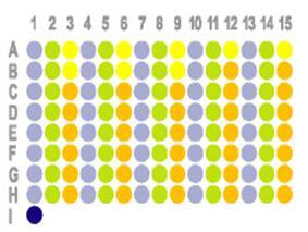 胃癌120点配套淋巴结组织芯片HStm-Ade120Lym-01