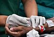 ASN 感染预防 UPDATE:血透中心静脉导管的抗生素封管