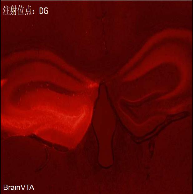 AAV介导shRNA干扰