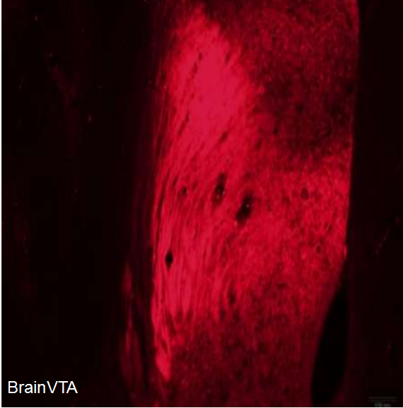 光遺傳(光抑制)rAAV-hSyn-eNpHR3.0-mCherry