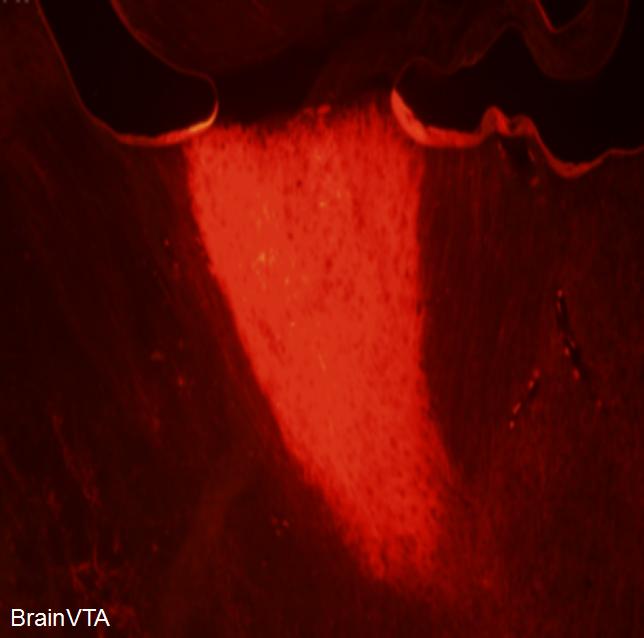 光遗传光激活 AAV病毒 rAAV-CaMKIIα-hChR2(H134R)-mCherry  试用装