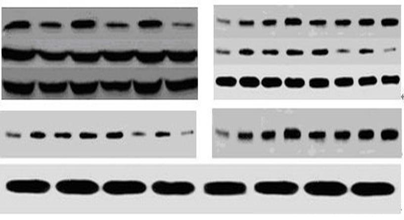 WB免疫印迹蛋白实验——原始胶片、电子版图片、目的条带光密度值、实验报告单等