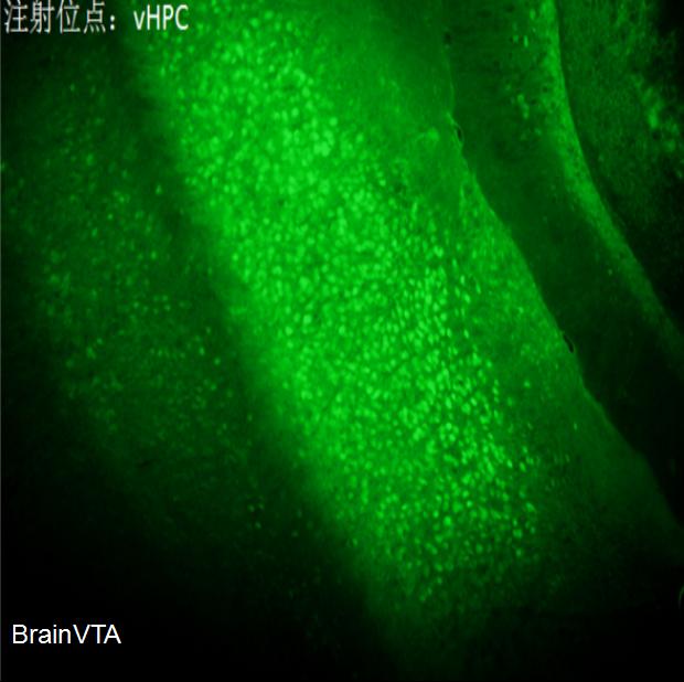 低频钙成像AAV病毒rAAV-CaMKIIα-GCaMP6s