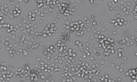 COLO205人结肠癌细胞