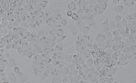 HeLa人子宫颈癌细胞