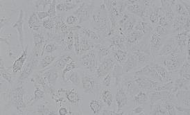 DU145人前列腺癌细胞