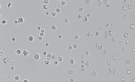 H22小鼠肝癌细胞