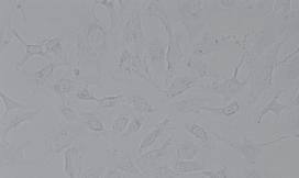 MRC-5人胚肺成纤维细胞