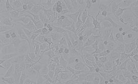 HepG2人肝癌细胞
