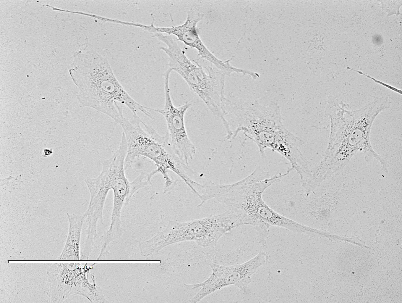 Rat Tracheal Epithelial Cells 大鼠气管上皮细胞