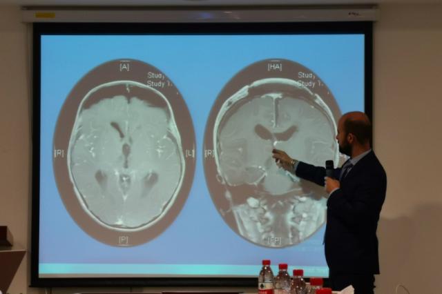 圆和再邀英专家来访、分享儿童神经外科发展成果