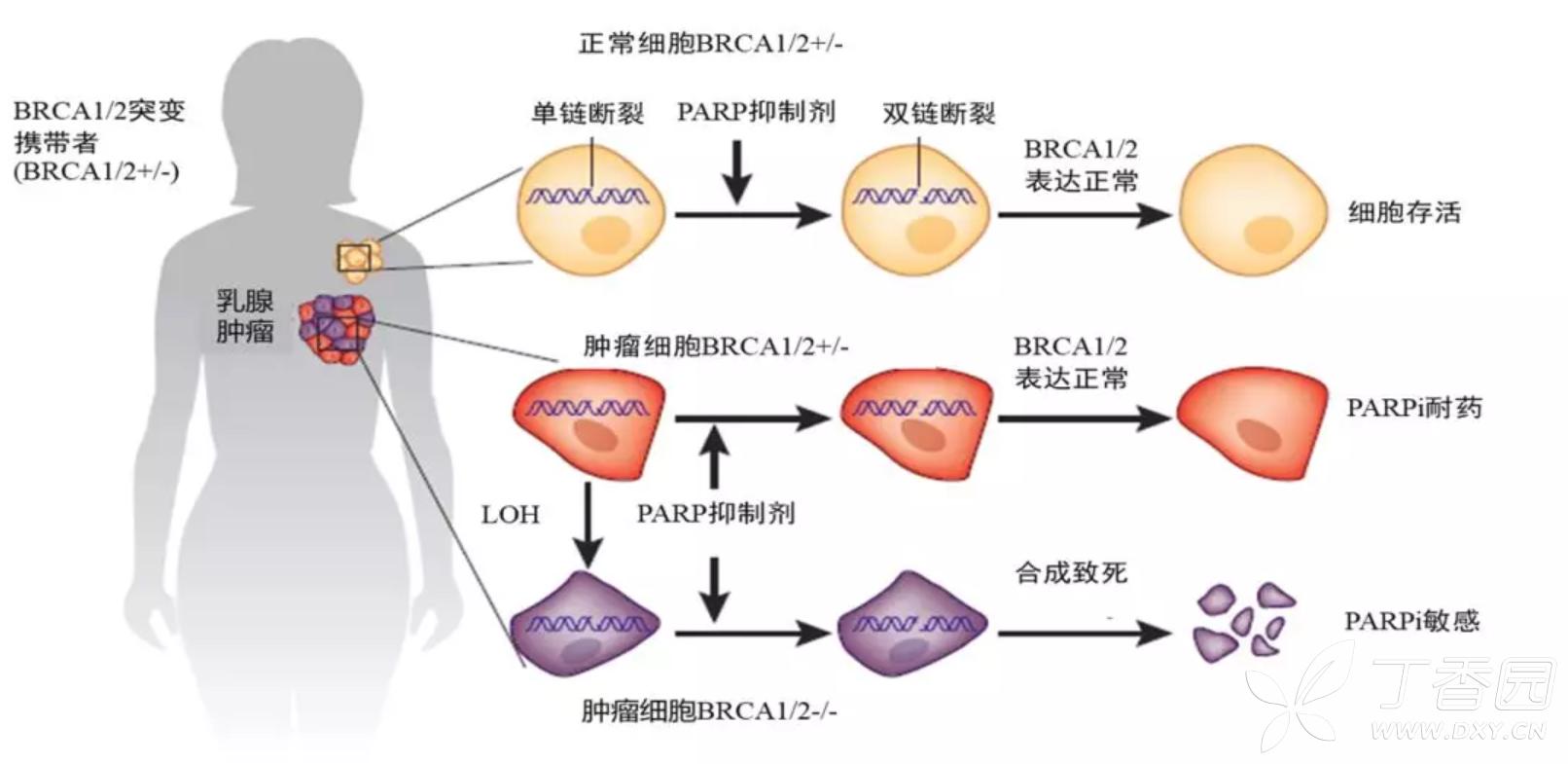 奥拉帕利是gBRCA HER2 晚期乳腺癌患者的新选择转载