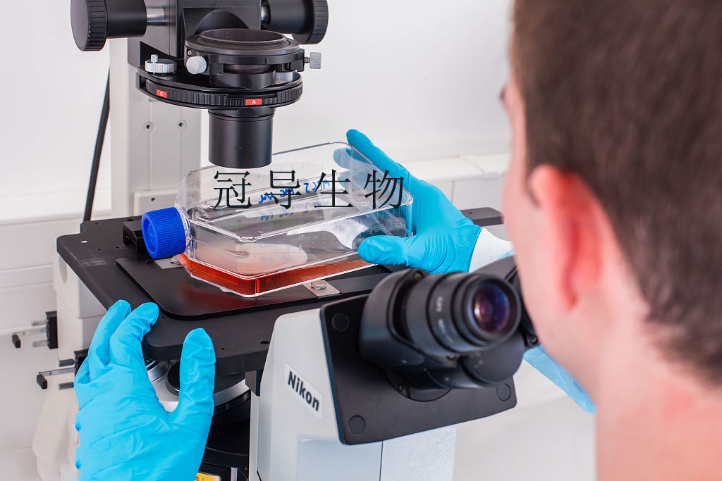 gpc-1 Cell|人前列腺癌细胞