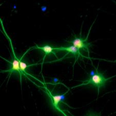 人运动神经细胞