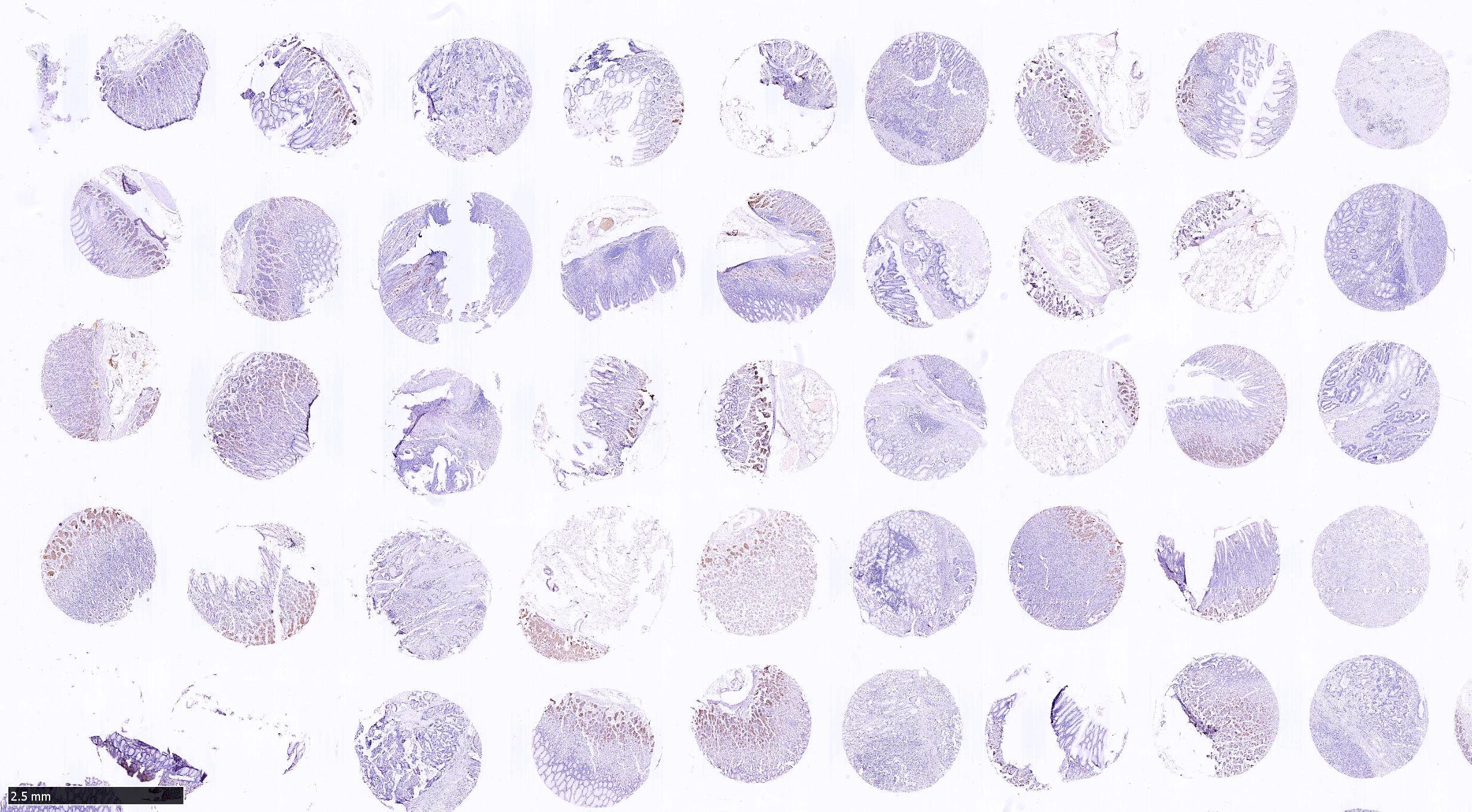 胃癌(幽门螺杆菌易感区域)80例240点组织芯片