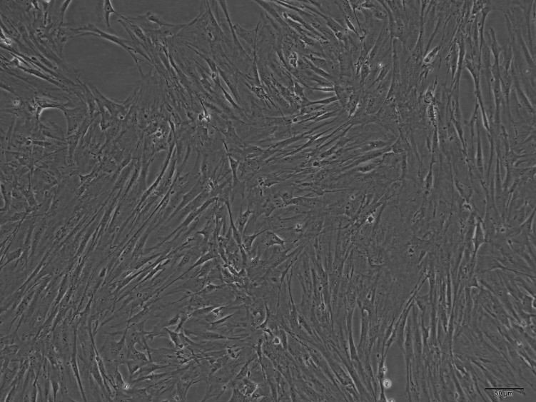 小鼠主动脉平滑肌细胞
