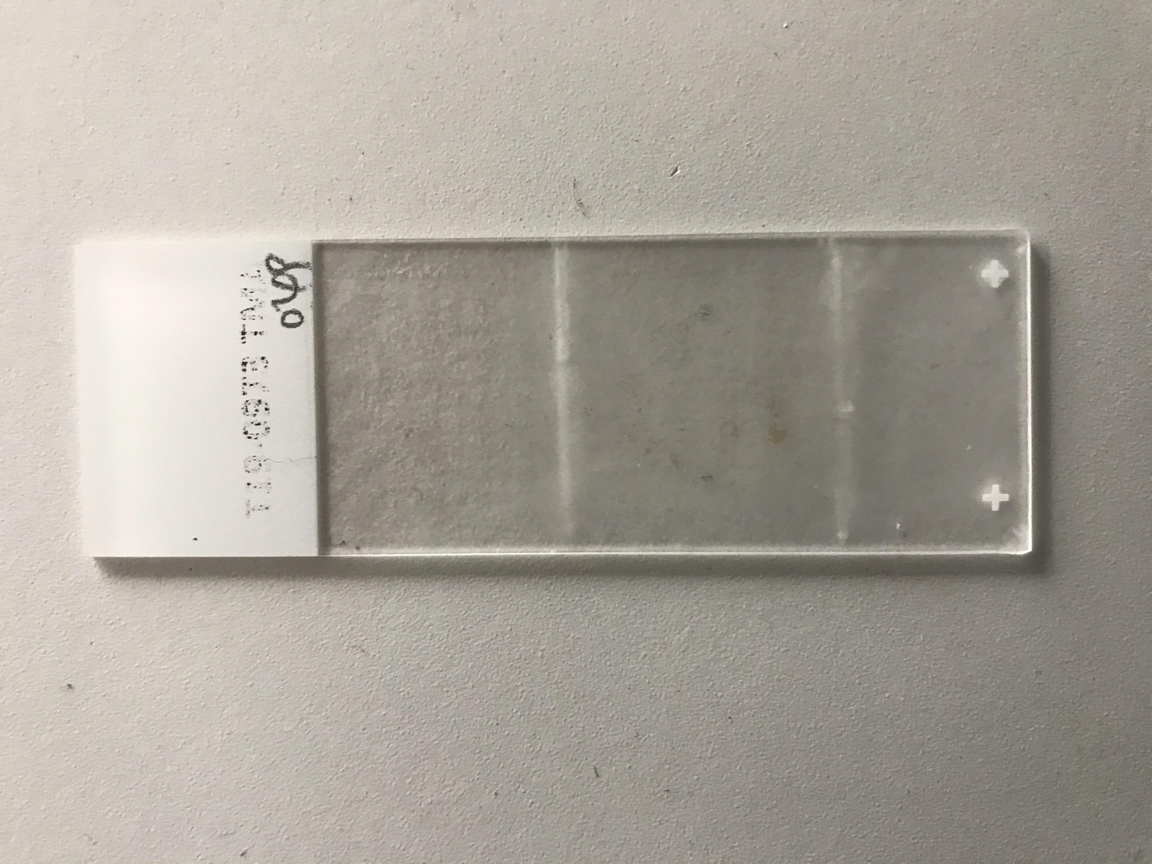 肺癌组织芯片