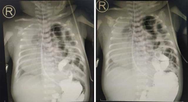 膈疝胃腸造影.jpg