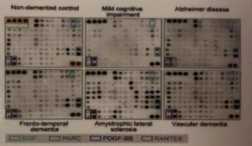 蛋白质芯片检测服务