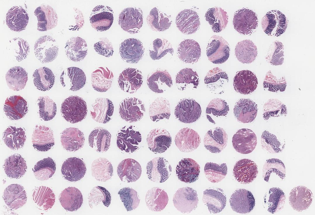 DCO703-结肠癌及匹配的边缘组织芯片