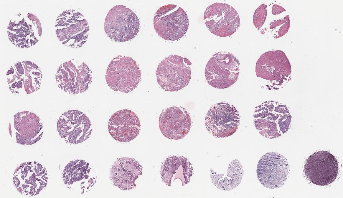 FUR244-绒毛膜癌组织芯片
