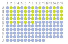 [宫颈癌,154点]HUteS154Su01