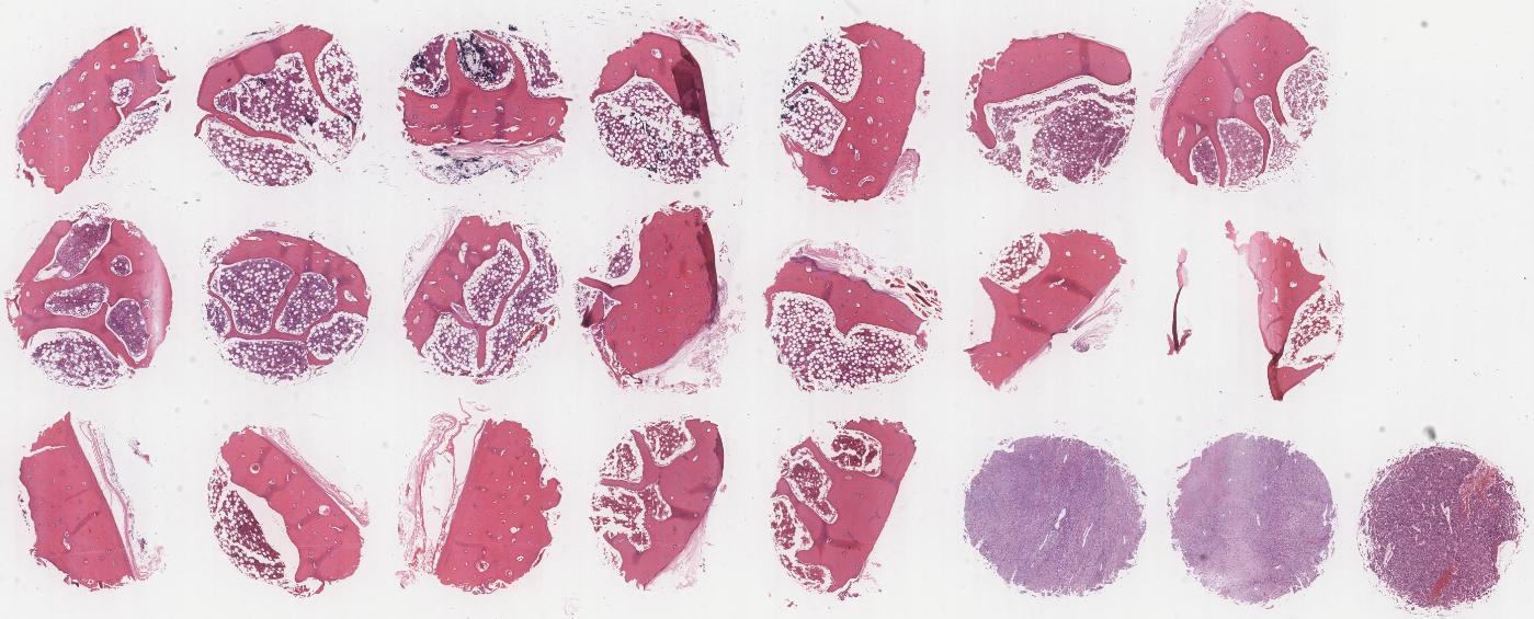 LBN244f-骨组织及骨肉瘤组织组合芯片