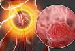 中国食管癌防治现状