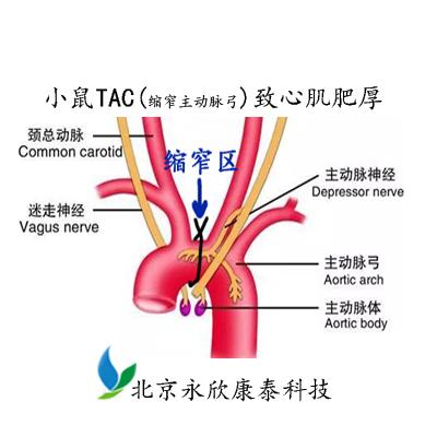 小鼠TAC(缩窄主动脉弓)致心肌肥厚模型