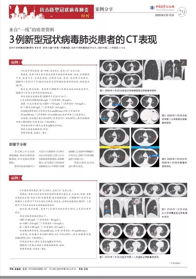 延大附院影像中心对新冠肺炎患者CT表现的分析被多家专业媒体刊登报道